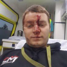 Kraujas: klaipėdiečio K.Katalevskij patirti sužalojimai atnešė daug skausmo – vyrą pirmadienio naktį Belgijoje strypu talžė sužvėrėjęs imigrantas.