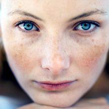 Pigmentuota oda: ar galima degintis saulėje?