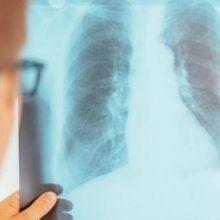 Pernai išaiškinta 30 tuberkulioze susirgusių vaikų