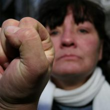 Telšiuose susimušė pora: moteris kando į ranką, vyras trenkė batu