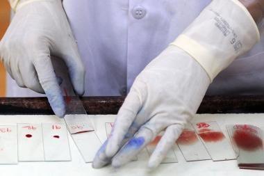 Kauno rajono gyventojui nustatyta maliarija