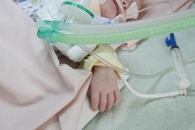 Kaune sunkiai sužalotas metukų neturintis kūdikis