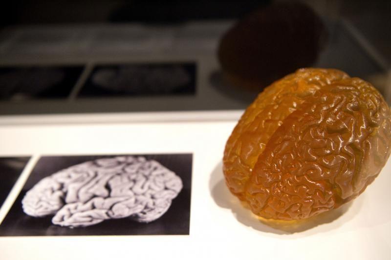 Muziejuje D.Britanijoje eksponuojama dalis A.Einšteino smegenų