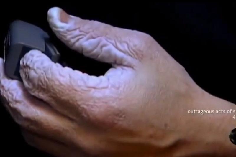 Kaip atrodo 10 dienų vandenyje mirkusios rankos?