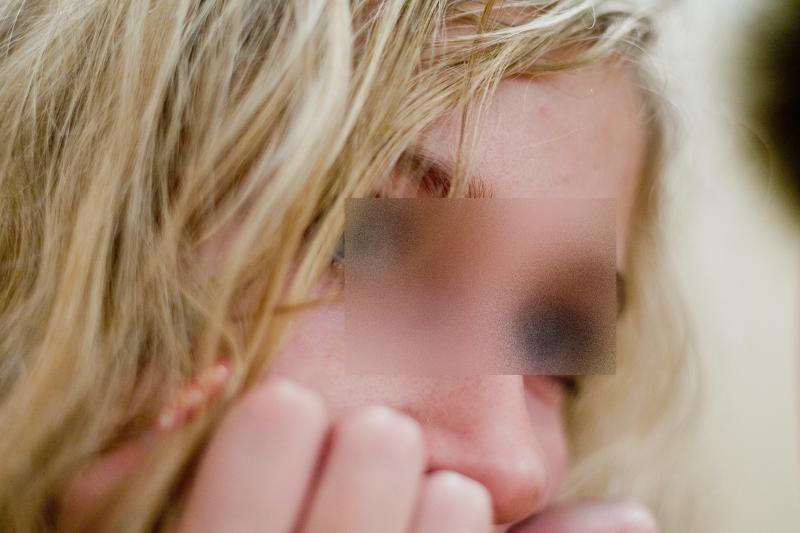 Merginai užpuolikai nudegino akis