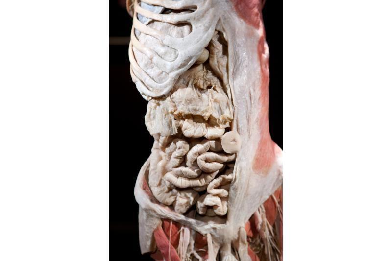 Prieštaringai vertinamoje parodoje – žmonių kūnai ir jų dalys