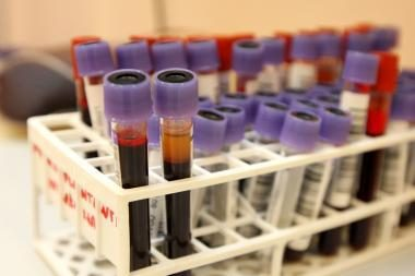 Nustatė 4 tūkst. kraujo sudedamųjų dalių