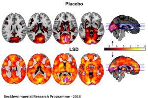 LSD reabilitacija: narkotikas taps efektyviu rytojaus vaistu?