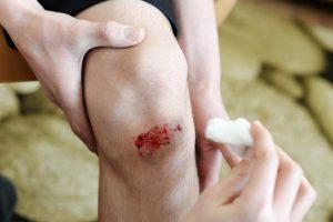 Kopūsto lapai ir briliantinė žaluma: kas padeda apsaugoti žaizdas nuo infekcijų?