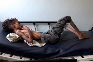 Jemene nuo bado galėjo mirti 85 tūkst. vaikų