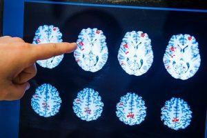 Ar gali būti, kad mūsų smegenys tokios didelės dėl mitybos?