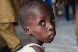 Humanitarinė krizė Afrikoje: mirtis graso pusantro milijono vaikų