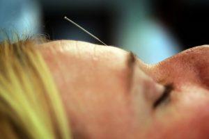 Akupunktūros specialistė: žmogaus organizme yra keli šimtai aktyviųjų taškų