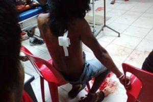 Per bokso rungtynes Filipinuose nugriaudėjo sprogimai: sužeisti 33 žmonės