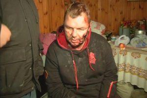 Į Lietuvą gydyti atskraidintas Ukrainos opozicijos aktyvistas D. Bulatovas