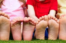 Plokščiapėdystė – ne kosmetinė problema, o liga