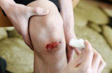 Specialistai perspėja: menkas nubrozdinimas gali virsti rimtu kraujo užkrėtimu
