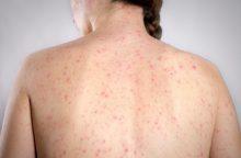 Pavojinga infekcija neaplenkė ir Kauno apskrities: moteris susirgo tymais