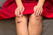 Į darželį mėlynomis kojomis atvesta mergaitė teigia, kad ją sumušė tėtis