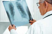 Tuberkuliozė – pavojinga, bet išgydoma